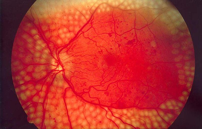 cirugia-retina